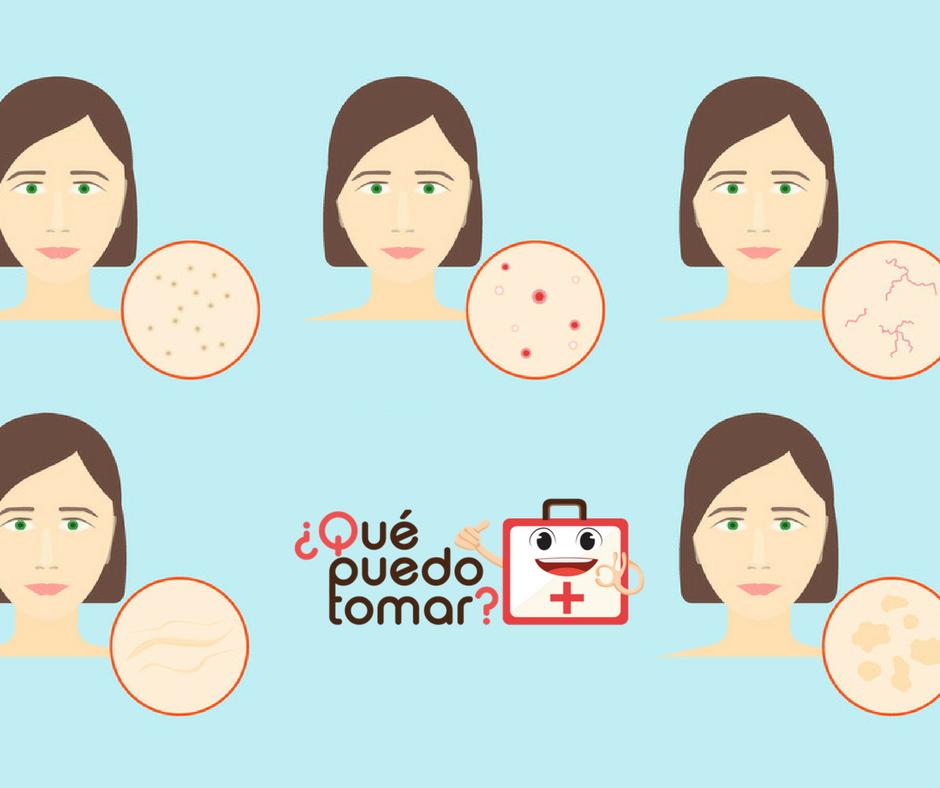 Dermatitis en la cara