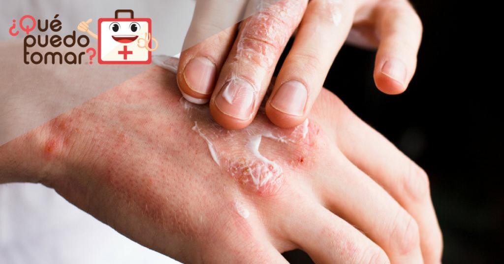 Irritación en la piel