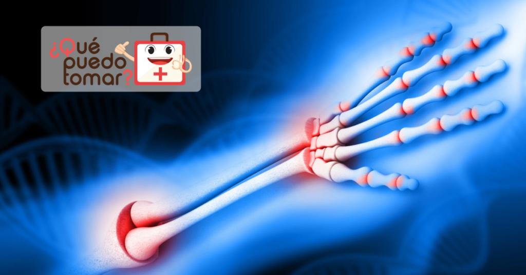 Artritis versus artrosis